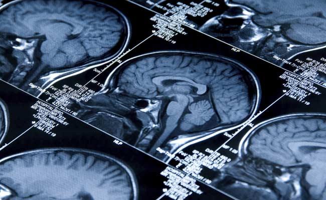 Higher Brain Connectivity Behind Intelligence, Creativity